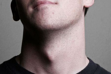 The Adams Apple In Women And Men What It Is And Why You Need It